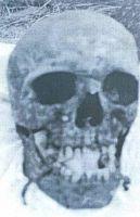 Lobanja jednog od nesretnika ubijenih u Prologu