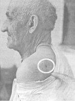 DUŠAN VUJANOVIĆ pokazuje gdje ga je pogodilo zrno prilikom strijeljanja