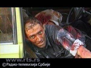 Ranjeni Srbin